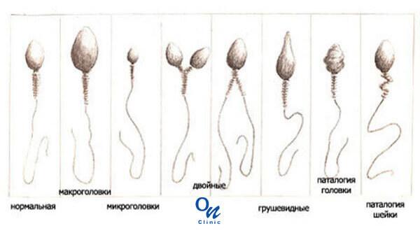 Лечение Астенозооспермии